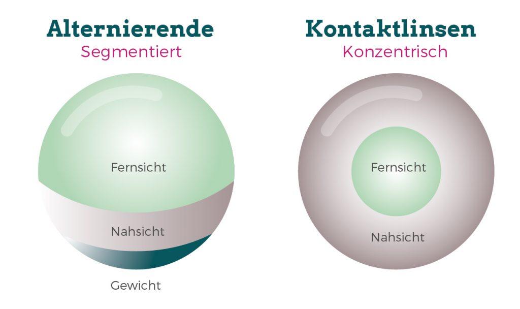 Alternierende multifokale Kontaktlinsen