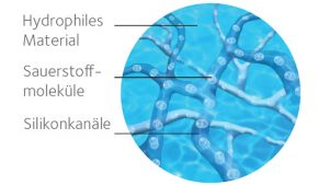 silikonkanal