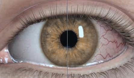 Sauerstoffversorgung bei Kontaktlinsen